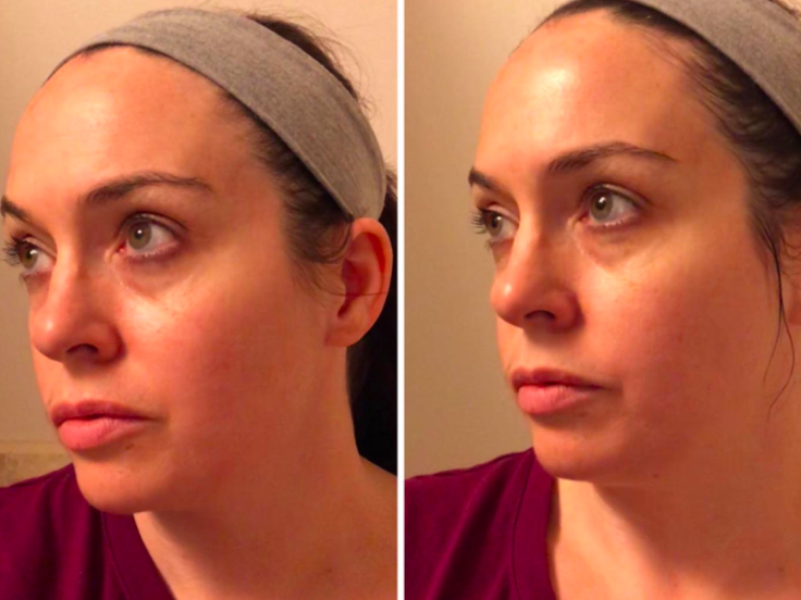 On the left, a reviewer's face looking a little red, and on the right, the same reviewer's face looking less red after using the cleansing balm