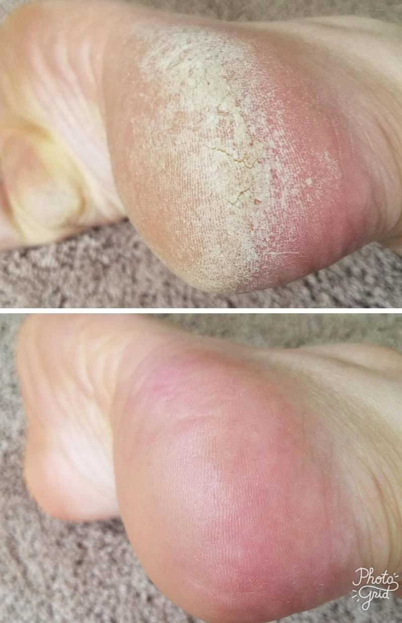 reviewer's pic of dried calloused heel and then a heel that's super smooth and moisturized