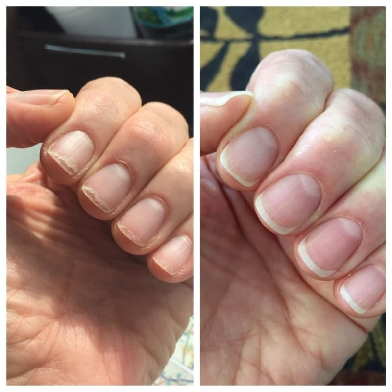reviewer's before pic with ragged, peeling nails then after with healthy looking nails