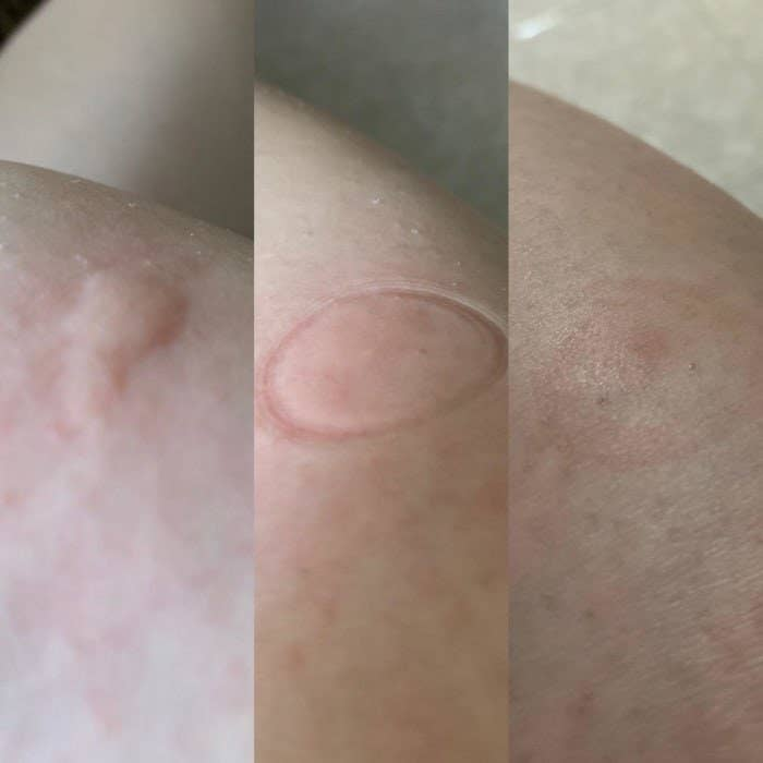 Reviewer's photoset showing the progression of the tool and that it made their mosquito bite flat and almost unnoticeable