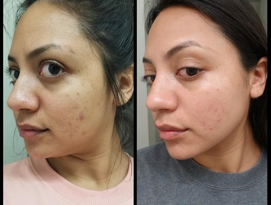 reviewer's before-and-after of her face showing some blemishes on her cheek compared to the bumps and marks being about 85% gone