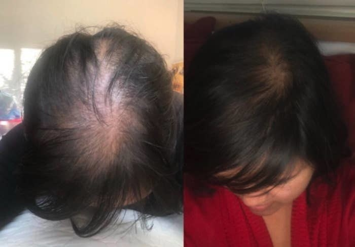 A before-and-after of a reviewer with a lot of hair loss on top of their head compared to a much fuller head of hair