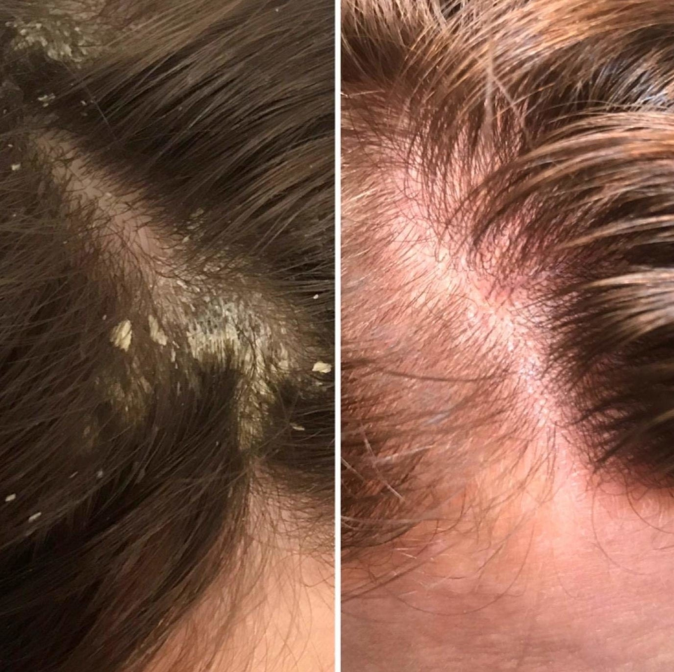 A before-and-after photo showing a head full of dandruff on the left and clear scalp on the right