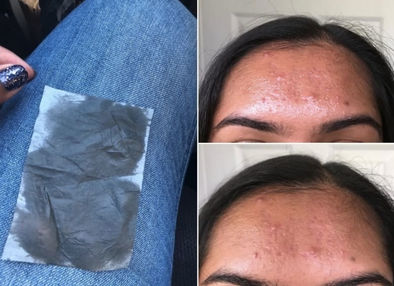 An oil blotting sheet, and then a before/after image of a reviewer using the sheet to remove excess oil from forehead. The after photo shows less shine and oil.