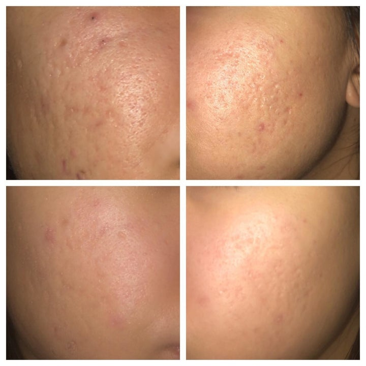 Another reviewer's before and afters showing the solution helped fade their acne scars and made their skin look smoother