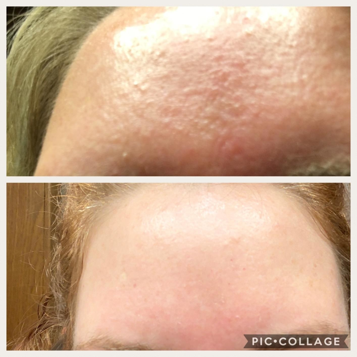 A reviewer before and after photo with the top image showing a forehead covered in fungal acne and the bottom image showing the same forehead cleared of acne