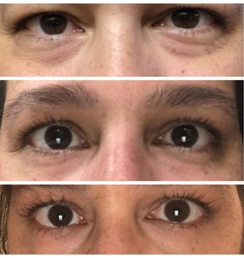 Different reviewer's progression photo showing their eye bags disappearing over time