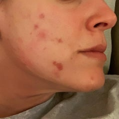 Reviewer photo of cheeks with dark red acne scars and breakouts
