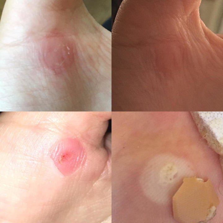 Different reviewer's progression photos showing the pads removed a dime-size wart