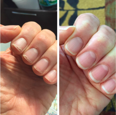 reviewer's before pic of ragged looking nails, then after pic of nice looking nails