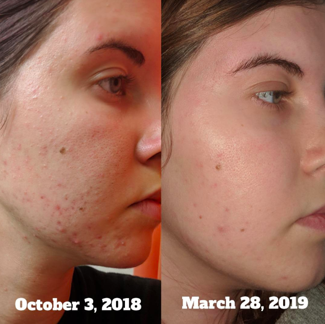 On the left, a reviewer with acne on their face in October 2018, and on the right, the same reviewer with their acne almost gone in March 2019