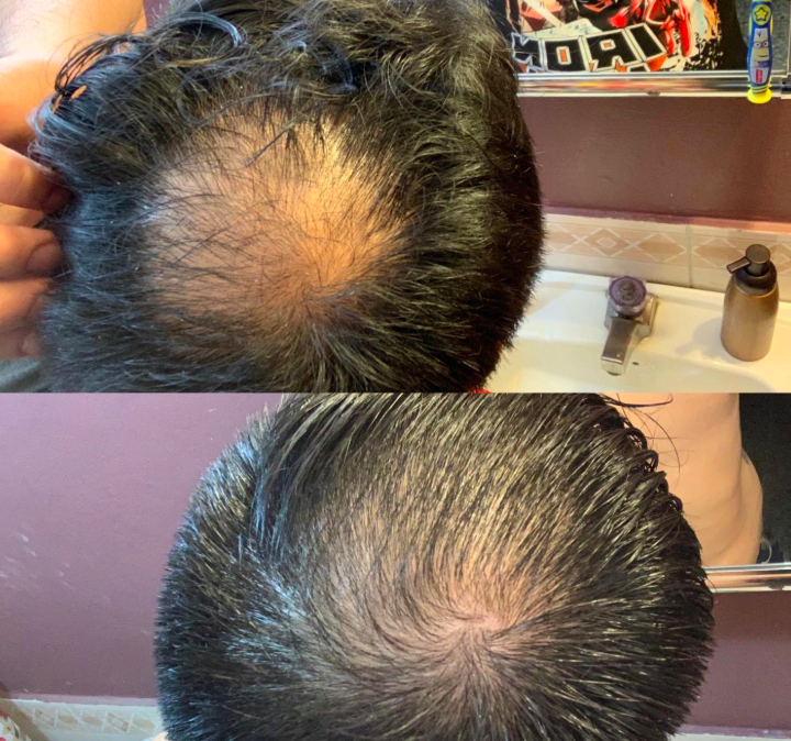 On the top, a reviewer showing their scalp hair thinning, and on the bottom, the same reviewer showing their scalp hair growing back