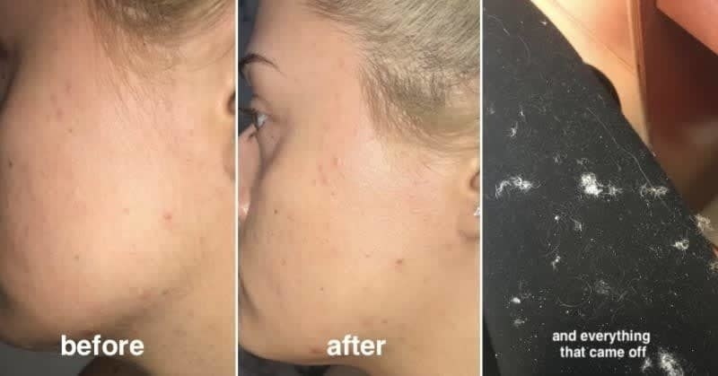 A reviewer's before-and-after of showing clumps of dead skin and peach fuzz that was shaved from their face