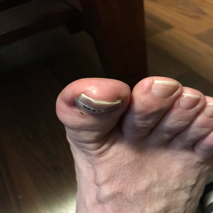 toenail looking less bent now