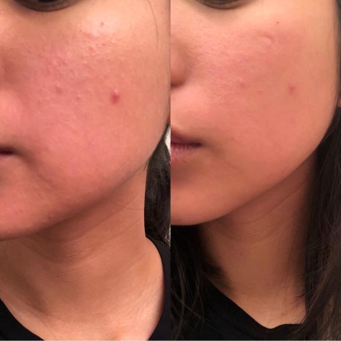 reviewer's bumpy skin before, then smoother texture and skin after using roller