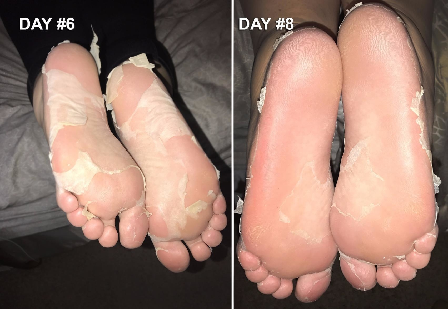 A reviewer image showing their feet during different stages of the peeling process. One photo shows a considerable amount of loose skin and the second photos shows less loose skin, with noticeably smoother soles.