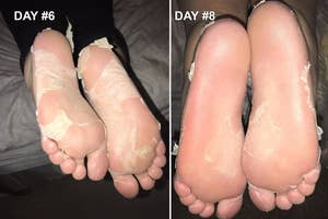 (left) Reviewer showing on day 6 how much their feet are peeling (right) reviewer showing how the skin has mostly come off by day 8