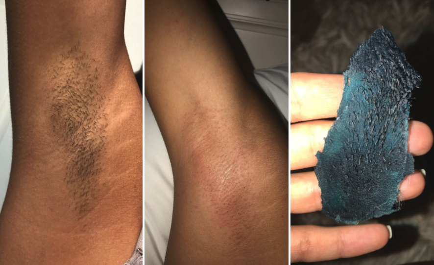 Reviewer image of armpit hair and then an armpit after the wax showing no hair