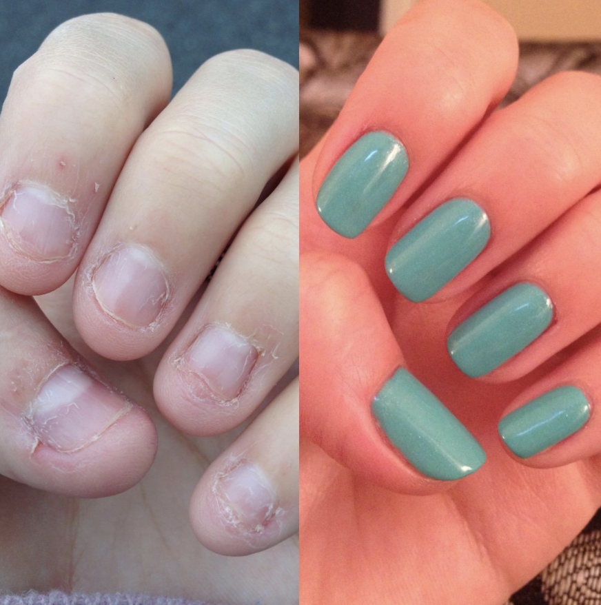 A reviewer's before photo of damaged, bitten, and brittle nails side-by-side with their after photo with strong, long, and painted nails
