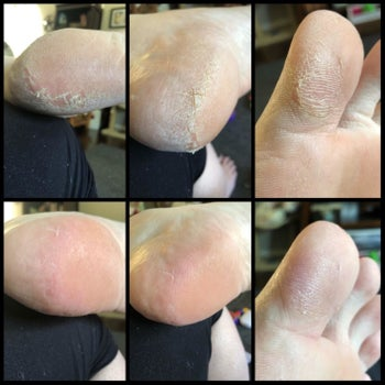 Calluses on a heel and toe looking improved and less rough in after photos