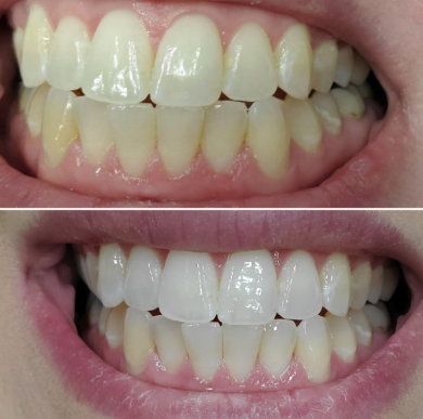 a before and after photo of a reviewer's teeth looking more white after using the pen