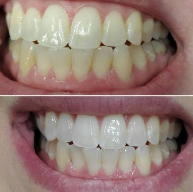 a reviewer's before and after photo showing their whitened teeth