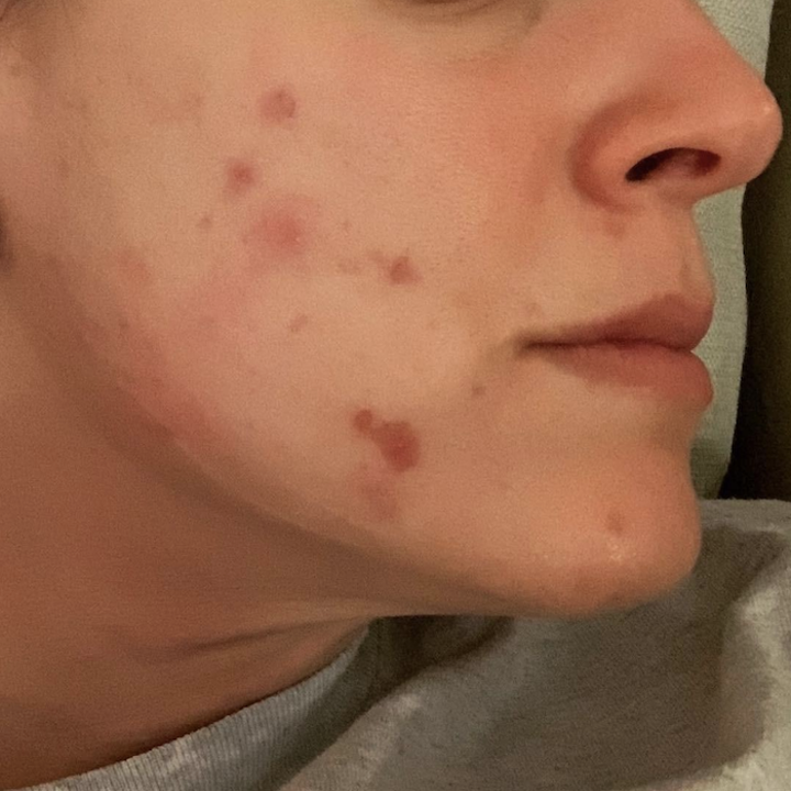close-up of a reviewer showing large red acne spots on their cheek and chin