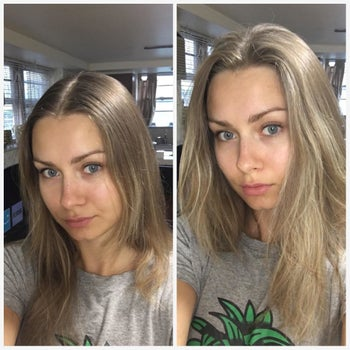 Another reviewer's before and after showing the dry shampoo removed greasiness and added volume