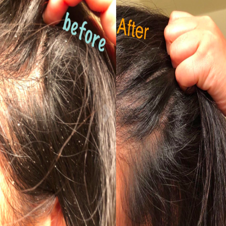 A customer review photo of their scalp before and after using the shampoo