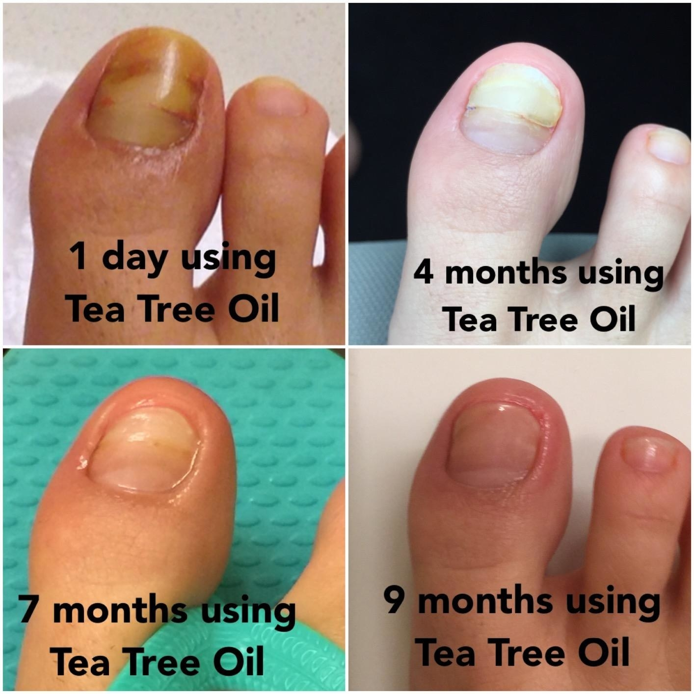 four images of a reviewer toe over 9 months showing nails going from yellow to normal nail color