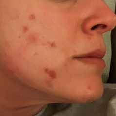 a reviewer's face covered in acne