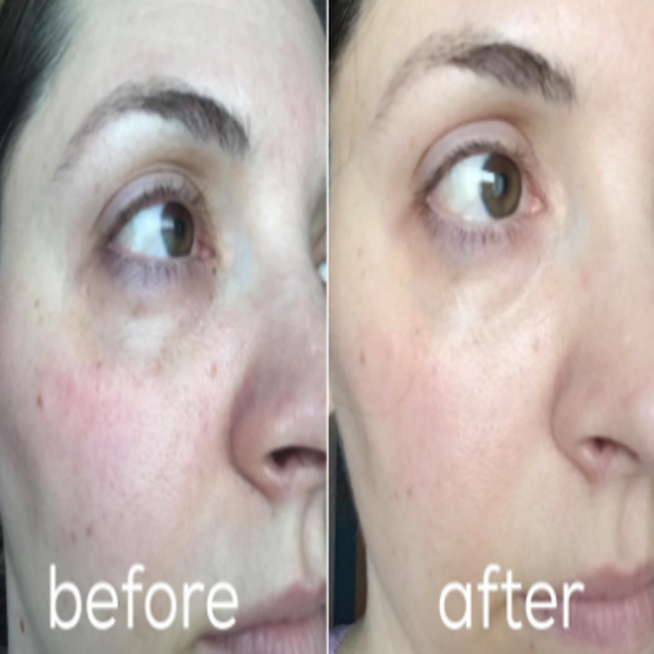 a reviewer showing their improved under eyes in a before and after photo