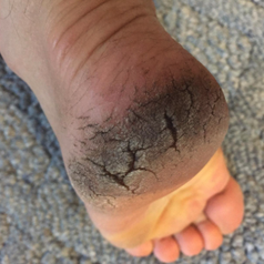 a reviewer's dirty, cracked heel