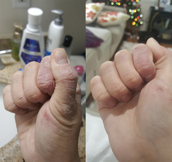 left: severely peeling hand right: hand with less peeling