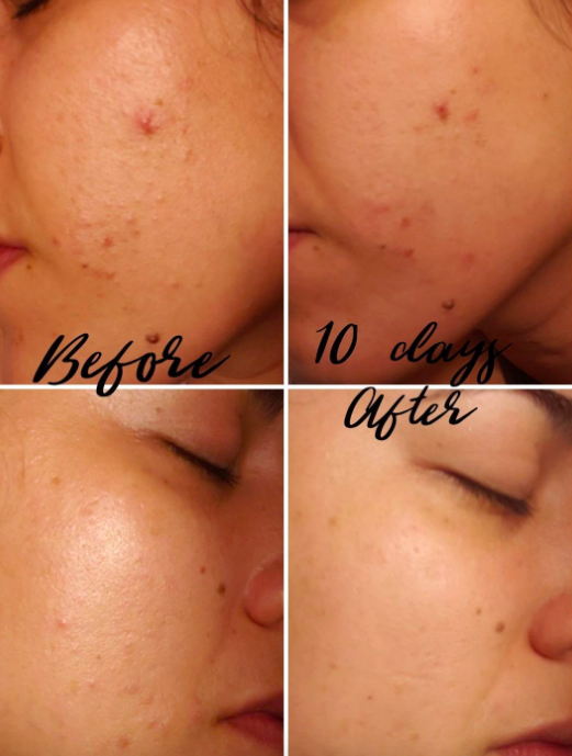 A series of photos showing a reviewer's face of acne clearing up from using the cream