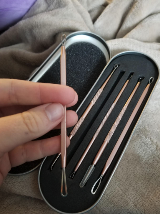 reviewer's hand holding one of the blackhead tools plus the case of four additional blackhead tools