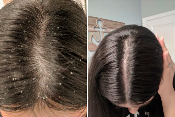 a before image showing dandruff scalp and an after showing no dandruff