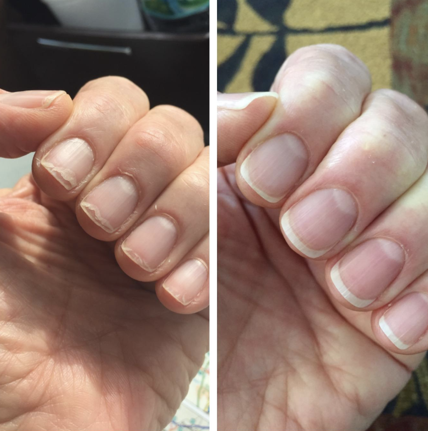 Chipped nails on reviewer grown strong and healthy after using product