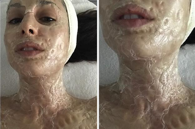 I Got A Facial That's Like An Alternative To Botox And Here Are The Results