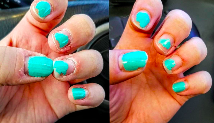 reviewer's before pic of super dry, painful looking hand, then after of the same hand looking moisturized
