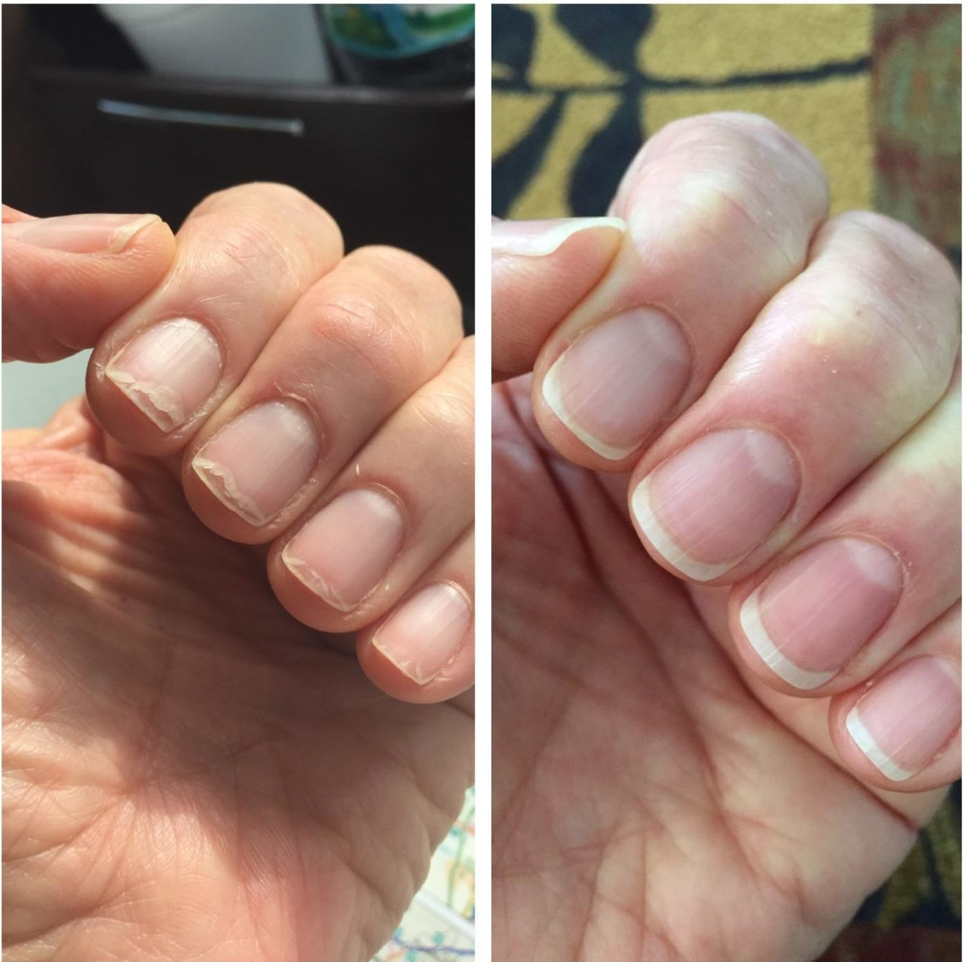 left: peeling chipped nails  right: pristine healthy nails