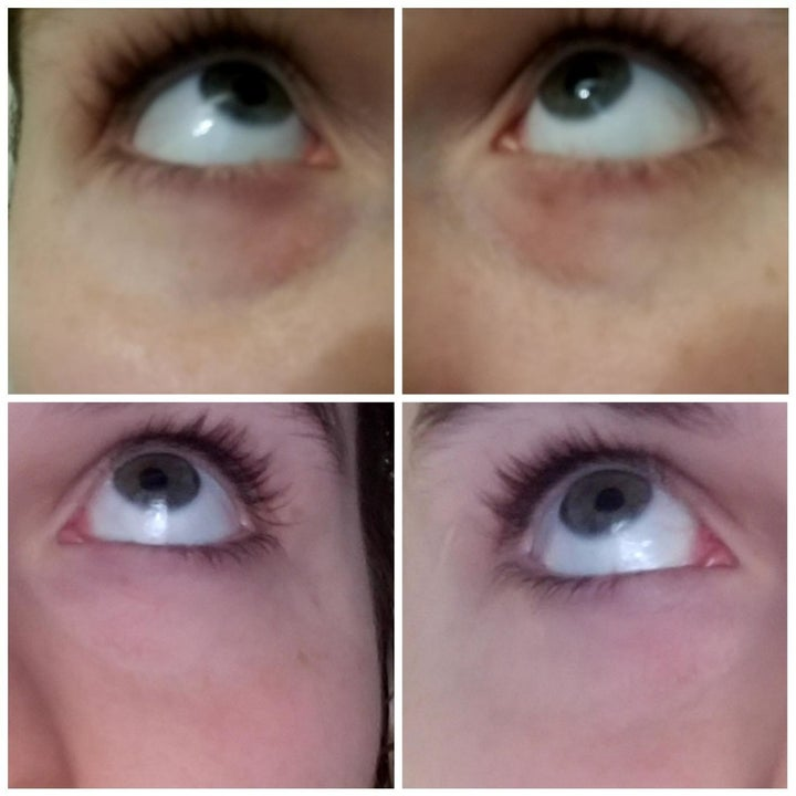 reviewer shows before and after of under eye bags looking lighter and less swollen