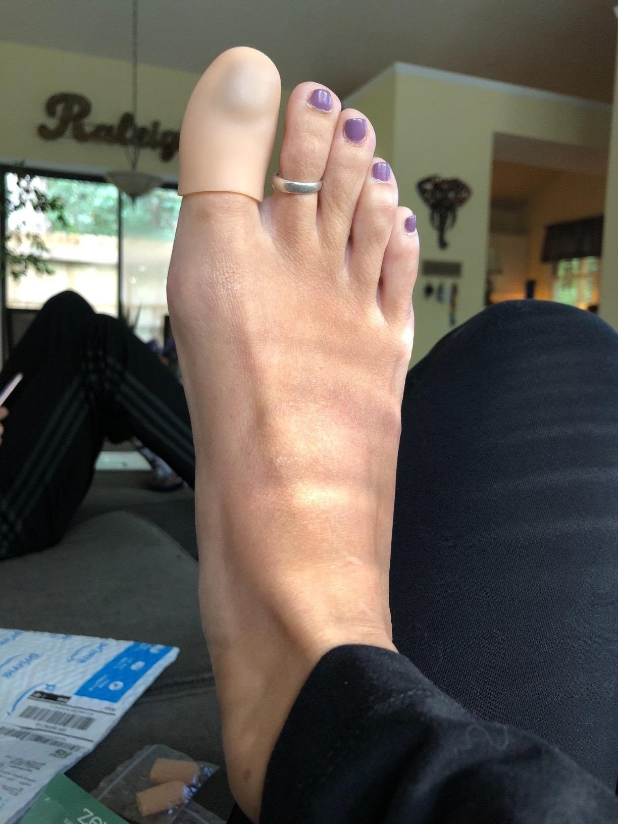 A reviewer showing the nude toe cap over their big toe