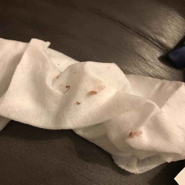 Reviewer photo of the eye boogers they removed on a tissue