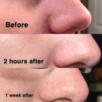 Reviewer progression photo showing the blackhead remover slowly shrinking their pores over a period of days