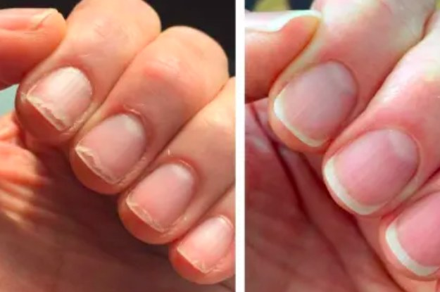 26 Products With Before-And-After Photos Convincing Enough To Consider Buying