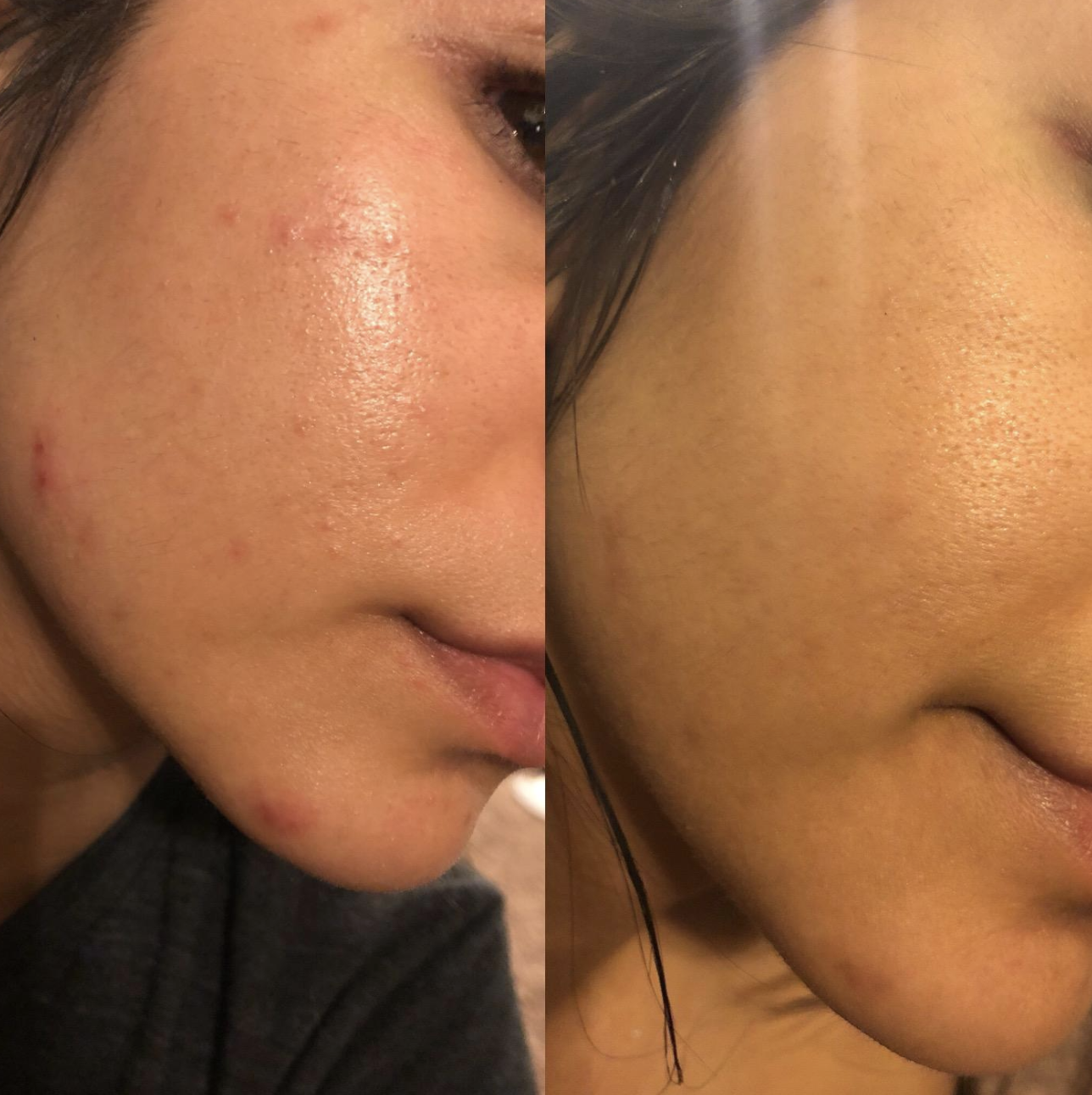 reviewer's before and after pic with the before having acne and scarring and the after pic showing almost clear skin