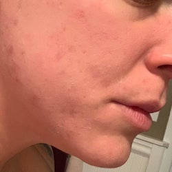 Same reviewer's cheeks, which are now a more even skin tone and free of almost all breakouts