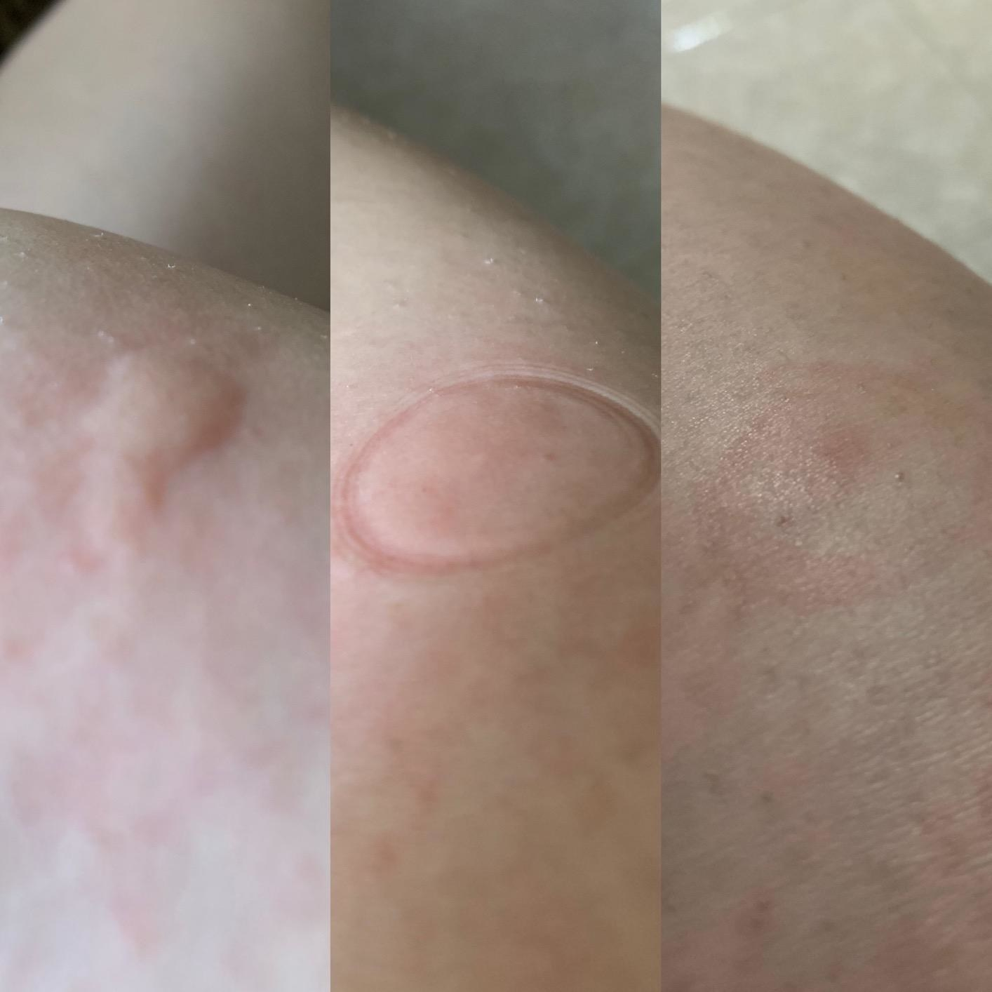 A reviewer's bug bite in three images: the bite, the bite immediately after using the tool with a circular mark, and after with reduced swelling