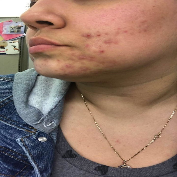 A reviewer's cheek and chin with acne
